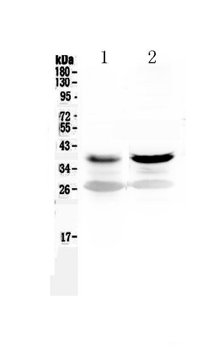 <b>Figure 1. Western blot analysis of MEK6 using anti-MEK6 antibody (A02011).  </b><br>Electrophoresis was performed on a 5-20% SDS-PAGE gel at 70V (Stacking gel) / 90V (Resolving gel) for 2-3 hours. The sample well of each lane was loaded with 50ug of sample under reducing conditions.  <br>Lane 1: rat skeletal muscle tissue lysate,<br>Lane 2: mouse skeletal muscle tissue lysate.  <br>After Electrophoresis, proteins were transferred to a Nitrocellulose membrane at 150mA for 50-90 minutes. Blocked the membrane with 5% Non-fat Milk/ TBS for 1.5 hour at RT. The membrane was incubated with rabbit anti-MEK6 antigen affinity purified polyclonal antibody (Catalog # A02011) at 0.5 μg/mL overnight at 4°C, then washed with TBS-0.1%Tween 3 times with 5 minutes each and probed with a goat anti-rabbit IgG-HRP secondary antibody at a dilution of 1:10000 for 1.5 hour at RT. The signal is developed using an Enhanced Chemiluminescent detection (ECL) kit (Catalog # EK1002) with Tanon 5200 system. A specific band was detected for MEK6 at approximately 38KD. The expected band size for MEK6 is at 38KD.