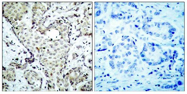 Figure 2. IHC analysis of MAP2K6 using anti-MAP2K6 antibody (A02011-2).<br>MAP2K6 was detected in paraffin-embedded section. Heat mediated antigen retrieval was performed in citrate buffer (pH6, epitope retrieval solution) for 20 mins. The tissue section was blocked with 10% goat serum. The tissue section was then incubated with 1ug/ml rabbit anti-MAP2K6 Antibody (A02011-2) overnight at 4°C. Biotinylated goat anti Rabbit IgG antibody was used as secondary antibody and incubated for 30 minutes at 37°C. The tissue section was developed using Strepavidin-Biotin-Complex (SABC)(Catalog # SA1022) with DAB as the chromogen.