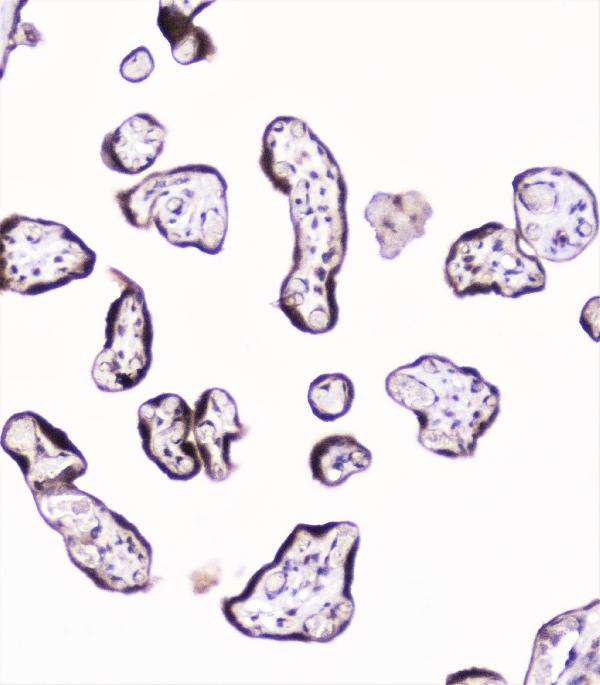 Figure 4. IHC analysis of UBE2I UBC9 using anti-UBE2I UBC9 antibody (A02295).<br>UBE2I UBC9 was detected in paraffin-embedded section of human placenta tissue. Heat mediated antigen retrieval was performed in citrate buffer (pH6, epitope retrieval solution) for 20 mins. The tissue section was blocked with 10% goat serum. The tissue section was then incubated with 1μg/ml rabbit anti-UBE2I UBC9 Antibody (A02295) overnight at 4°C. Biotinylated goat anti-rabbit IgG was used as secondary antibody and incubated for 30 minutes at 37°C. The tissue section was developed using Strepavidin-Biotin-Complex (SABC)(Catalog # SA1022) with DAB as the chromogen. <br>