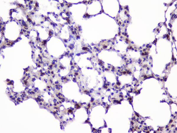 Figure 7. IHC analysis of UBE2I UBC9 using anti-UBE2I UBC9 antibody (A02295).<br>UBE2I UBC9 was detected in paraffin-embedded section of rat lung tissue. Heat mediated antigen retrieval was performed in citrate buffer (pH6, epitope retrieval solution) for 20 mins. The tissue section was blocked with 10% goat serum. The tissue section was then incubated with 1μg/ml rabbit anti-UBE2I UBC9 Antibody (A02295) overnight at 4°C. Biotinylated goat anti-rabbit IgG was used as secondary antibody and incubated for 30 minutes at 37°C. The tissue section was developed using Strepavidin-Biotin-Complex (SABC)(Catalog # SA1022) with DAB as the chromogen. <br>