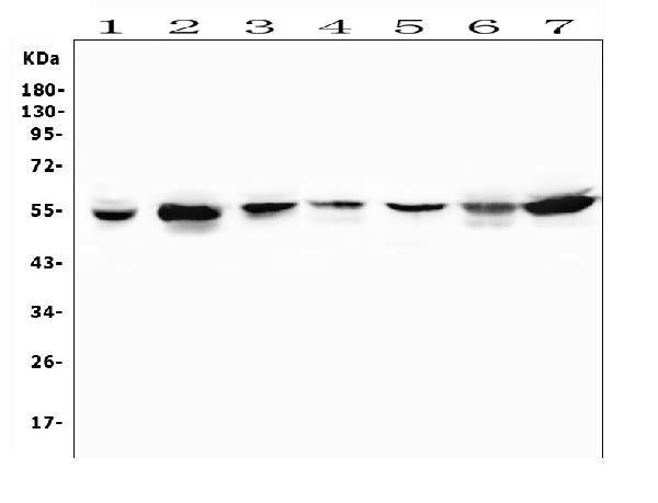 Figure 6. Western blot analysis of MUC13 using anti-MUC13 antibody (A02674-2). <br> Electrophoresis was performed on a 5-20% SDS-PAGE gel at 70V (Stacking gel) / 90V (Resolving gel) for 2-3 hours. The sample well of each lane was loaded with 50ug of sample under reducing conditions. <br> Lane 1: human placenta tissue lysates, <br> Lane 2: human Caco-2 whole cell lysates, <br> Lane 3: human PC-3 whole cell lysates, <br> Lane 4: human U2OS whole cell lysates, <br> Lane 5: human U-87MG whole cell lysates, <br> Lane 6: human HepG2 whole cell lysates, <br> Lane 7: human Hela whole cell lysates. <br> After Electrophoresis, proteins were transferred to a Nitrocellulose membrane at 150mA for 50-90 minutes. Blocked the membrane with 5% Non-fat Milk/ TBS for 1.5 hour at RT. The membrane was incubated with rabbit anti-MUC13 antigen affinity purified polyclonal antibody (Catalog # A02674-2) at 0.5 μg/mL overnight at 4°C, then washed with TBS-0.1%Tween 3 times with 5 minutes each and probed with a goat anti-rabbit IgG-HRP secondary antibody at a dilution of 1:10000 for 1.5 hour at RT. The signal is developed using an Enhanced Chemiluminescent detection (ECL) kit (Catalog # EK1002) with Tanon 5200 system. A specific band was detected for MUC13 at approximately 55KD. The expected band size for MUC13 is at 55KD.
