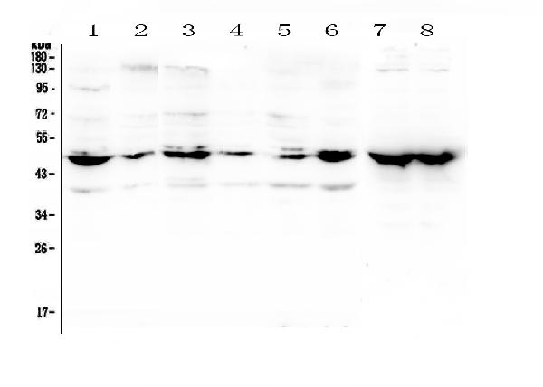 Figure 1. Western blot analysis of NSE using anti-NSE antibody (A02930). <br>Electrophoresis was performed on a 5-20% SDS-PAGE gel at 70V (Stacking gel) / 90V (Resolving gel) for 2-3 hours. The sample well of each lane was loaded with 50ug of sample under reducing conditions. <br>Lane 1: human 22RV1 whole cell lysate,<br>Lane 2: human U20S whole cell lysate,<br>Lane 3: human A431 whole cell lysate,<br>Lane 4: human HepG2 whole cell lysate,<br>Lane 5: human A549 whole cell lysate,<br>Lane 6: human SHG-44 whole cell lysate,<br>Lane 7: rat brain tissue lysates,<br>Lane 8: mouse brain tissue lysates. <br>After Electrophoresis, proteins were transferred to a Nitrocellulose membrane at 150mA for 50-90 minutes. Blocked the membrane with 5% Non-fat Milk/ TBS for 1.5 hour at RT. The membrane was incubated with rabbit anti-NSE antigen affinity purified polyclonal antibody (Catalog # A02930) at 0.5 μg/mL overnight at 4°C, then washed with TBS-0.1%Tween 3 times with 5 minutes each and probed with a goat anti-rabbit IgG-HRP secondary antibody at a dilution of 1:10000 for 1.5 hour at RT. The signal is developed using an Enhanced Chemiluminescent detection (ECL) kit (Catalog # EK1002) with Tanon 5200 system. A specific band was detected for NSE at approximately 47KD. The expected band size for NSE is at 47KD.