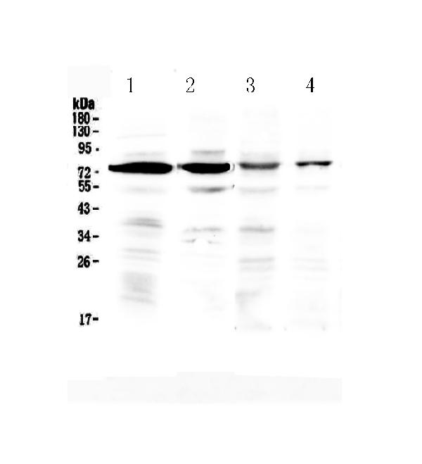 Figure 1. Western blot analysis of IBSP using anti-IBSP antibody (A03183). <br>Electrophoresis was performed on a 5-20% SDS-PAGE gel at 70V (Stacking gel) / 90V (Resolving gel) for 2-3 hours. The sample well of each lane was loaded with 50ug of sample under reducing conditions. <br>Lane 1: rat brain tissue lysates,<br>Lane 2: mouse brain tissue lysates,<br>Lane 3: human Hela whole cell lysates,<br>Lane 4: human U2OS whole cell lysates. <br>After Electrophoresis, proteins were transferred to a Nitrocellulose membrane at 150mA for 50-90 minutes. Blocked the membrane with 5% Non-fat Milk/ TBS for 1.5 hour at RT. The membrane was incubated with rabbit anti-IBSP antigen affinity purified polyclonal antibody (Catalog # A03183) at 0.5 ug/mL overnight at 4℃, then washed with TBS-0.1%Tween 3 times with 5 minutes each and probed with a goat anti-rabbit IgG-HRP secondary antibody at a dilution of 1:10000 for 1.5 hour at RT. The signal is developed using an Enhanced Chemiluminescent detection (ECL) kit (Catalog # EK1002) with Tanon 5200 system. A specific band was detected for IBSP at approximately 75KD. The expected band size for IBSP is at 35KD.