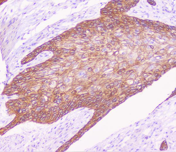 Figure 2. IHC analysis of P cadherin using anti-P cadherin antibody (A03353-1).<br>P cadherin was detected in paraffin-embedded section of human oesophagus squama cancer tissue. Heat mediated antigen retrieval was performed in citrate buffer (pH6, epitope retrieval solution) for 20 mins. The tissue section was blocked with 10% goat serum. The tissue section was then incubated with 1μg/ml rabbit anti-P cadherin Antibody (A03353-1) overnight at 4°C. Biotinylated goat anti-rabbit IgG was used as secondary antibody and incubated for 30 minutes at 37°C. The tissue section was developed using Strepavidin-Biotin-Complex (SABC)(Catalog # SA1022) with DAB as the chromogen. <br>