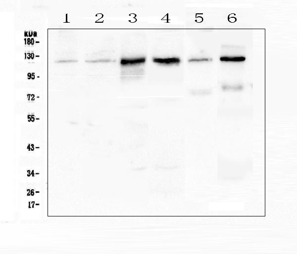 Figure 1. Western blot analysis of P cadherin using anti-P cadherin antibody (A03353-1). <br>Electrophoresis was performed on a 5-20% SDS-PAGE gel at 70V (Stacking gel) / 90V (Resolving gel) for 2-3 hours. The sample well of each lane was loaded with 50ug of sample under reducing conditions. <br>Lane 1: human Hela whole cell lysate,<br>Lane 2: human K562 whole cell lysate,<br>Lane 3: human A431 whole cell lysate,<br>Lane 4: human Caco-2 whole cell lysate,<br>Lane 5: rat brain tissue lysates,<br>Lane 6: mouse brain tissue lysates. <br>After Electrophoresis, proteins were transferred to a Nitrocellulose membrane at 150mA for 50-90 minutes. Blocked the membrane with 5% Non-fat Milk/ TBS for 1.5 hour at RT. The membrane was incubated with rabbit anti-P cadherin antigen affinity purified polyclonal antibody (Catalog # A03353-1) at 0.5 μg/mL overnight at 4°C, then washed with TBS-0.1%Tween 3 times with 5 minutes each and probed with a goat anti-rabbit IgG-HRP secondary antibody at a dilution of 1:10000 for 1.5 hour at RT. The signal is developed using an Enhanced Chemiluminescent detection (ECL) kit (Catalog # EK1002) with Tanon 5200 system. A specific band was detected for P cadherin at approximately 120KD. The expected band size for P cadherin is at 91KD.
