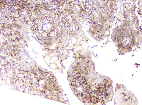 Figure 3. IHC analysis of LCP1 using anti-LCP1 antibody (A03361).<br>LCP1 was detected in paraffin-embedded section of human tonsil tissue. Heat mediated antigen retrieval was performed in citrate buffer (pH6, epitope retrieval solution) for 20 mins. The tissue section was blocked with 10% goat serum. The tissue section was then incubated with 1μg/ml rabbit anti-LCP1 Antibody (A03361) overnight at 4°C. Biotinylated goat anti-rabbit IgG was used as secondary antibody and incubated for 30 minutes at 37°C. The tissue section was developed using Strepavidin-Biotin-Complex (SABC)(Catalog # SA1022) with DAB as the chromogen. <br>