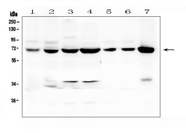 Figure 1. Western blot analysis of LCP1 using anti-LCP1 antibody (A03361). <br>Electrophoresis was performed on a 5-20% SDS-PAGE gel at 70V (Stacking gel) / 90V (Resolving gel) for 2-3 hours. The sample well of each lane was loaded with 50ug of sample under reducing conditions. <br>Lane 1: human CCRF-CEM whole cell lysates,<br>Lane 2: human HEK293 whole cell lysates,<br>Lane 3: human HL-60 whole cell lysates,<br>Lane 4: human THP-1 whole cell lysates,<br>Lane 5: rat spleen tissue lysates,<br>Lane 6: mouse spleen tissue lysates,<br>Lane 7: mouse RAW246.7 whole cell lysates. <br>After Electrophoresis, proteins were transferred to a Nitrocellulose membrane at 150mA for 50-90 minutes. Blocked the membrane with 5% Non-fat Milk/ TBS for 1.5 hour at RT. The membrane was incubated with rabbit anti-LCP1 antigen affinity purified polyclonal antibody (Catalog # A03361) at 0.5 μg/mL overnight at 4°C, then washed with TBS-0.1%Tween 3 times with 5 minutes each and probed with a goat anti-rabbit IgG-HRP secondary antibody at a dilution of 1:10000 for 1.5 hour at RT. The signal is developed using an Enhanced Chemiluminescent detection (ECL) kit (Catalog # EK1002) with Tanon 5200 system. A specific band was detected for LCP1 at approximately 70KD. The expected band size for LCP1 is at 70KD.