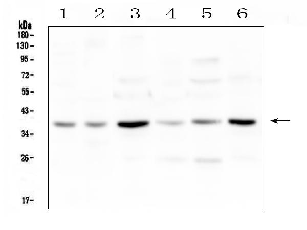 Figure 1. Western blot analysis of SIRT4 using anti-SIRT4 antibody (A03764-1). <br>Electrophoresis was performed on a 5-20% SDS-PAGE gel at 70V (Stacking gel) / 90V (Resolving gel) for 2-3 hours. The sample well of each lane was loaded with 50ug of sample under reducing conditions. <br>Lane 1: rat brain tissue lysates,<br>Lane 2: rat heart tissue lysates,<br>Lane 3: rat liver tissue lysates,<br>Lane 4: mouse brain tissue lysates,<br>Lane 5: mouse heart tissue lysates,<br>Lane 6: mouse liver tissue lysates. <br>After Electrophoresis, proteins were transferred to a Nitrocellulose membrane at 150mA for 50-90 minutes. Blocked the membrane with 5% Non-fat Milk/ TBS for 1.5 hour at RT. The membrane was incubated with rabbit anti-SIRT4 antigen affinity purified polyclonal antibody (Catalog # A03764-1) at 0.5 μg/mL overnight at 4°C, then washed with TBS-0.1%Tween 3 times with 5 minutes each and probed with a goat anti-rabbit IgG-HRP secondary antibody at a dilution of 1:10000 for 1.5 hour at RT. The signal is developed using an Enhanced Chemiluminescent detection (ECL) kit (Catalog # EK1002) with Tanon 5200 system. A specific band was detected for SIRT4 at approximately 38KD. The expected band size for SIRT4 is at 35KD.