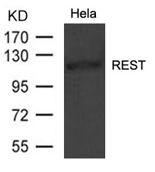Figure 1. Western blot analysis of REST using anti-REST antibody (A03852).<br>Electrophoresis was performed on a 5-20% SDS-PAGE gel at 70V (Stacking gel) / 90V (Resolving gel) for 2-3 hours. The sample well of each lane was loaded with 50ug of sample under reducing conditions. <br>After Electrophoresis, proteins were transferred to a Nitrocellulose membrane at 150mA for 50-90 minutes. Blocked the membrane with 5% Non-fat Milk/ TBS for 1.5 hour at RT. The membrane was incubated with rabbit anti-REST antigen affinity purified polyclonal antibody (Catalog # A03852) at 0.5 ug/mL overnight at 4°C, then washed with TBS-0.1%Tween 3 times with 5 minutes each and probed with a goat anti-Rabbit IgG-HRP secondary antibody at a dilution of 1:10000 for 1.5 hour at RT. The signal is developed using an Enhanced Chemiluminescent detection (ECL) kit (Catalog # SA1022) with Tanon 5200 system. A specific band was detected for REST.