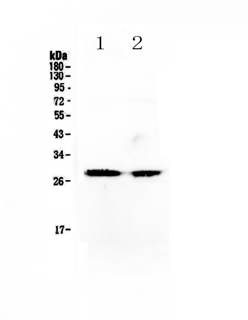Figure 1. Western blot analysis of Myf5 using anti-Myf5 antibody (A04040-1).  <br>Electrophoresis was performed on a 5-20% SDS-PAGE gel at 70V (Stacking gel) / 90V (Resolving gel) for 2-3 hours. The sample well of each lane was loaded with 50ug of sample under reducing conditions.  <br>Lane 1: human SW620 cell lysates, <br>Lane 2: mouse testis tissue lysates.<br>After Electrophoresis, proteins were transferred to a Nitrocellulose membrane at 150mA for 50-90 minutes. Blocked the membrane with 5% Non-fat Milk/ TBS for 1.5 hour at RT. The membrane was incubated with rabbit anti-Myf5 antigen affinity purified polyclonal antibody (Catalog # A04040-1) at 0.5 μg/mL overnight at 4°C, then washed with TBS-0.1%Tween 3 times with 5 minutes each and probed with a goat anti-rabbit IgG-HRP secondary antibody at a dilution of 1:10000 for 1.5 hour at RT. The signal is developed using an Enhanced Chemiluminescent detection (ECL) kit (Catalog # EK1002) with Tanon 5200 system. A specific band was detected for Myf5 at approximately 28KD. The expected band size for Myf5 is at 28KD.