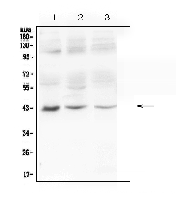 Figure 1. Western blot analysis of MAdCAM1 using anti-MAdCAM1 antibody (A04227-1).  <br>Electrophoresis was performed on a 5-20% SDS-PAGE gel at 70V (Stacking gel) / 90V (Resolving gel) for 2-3 hours. The sample well of each lane was loaded with 50ug of sample under reducing conditions.  <br>Lane 1: human 293T whole cell lysate,<br>Lane 2: human A375 whole cell lysate,<br>Lane 3: human K562 whole cell lysate.  <br>After Electrophoresis, proteins were transferred to a Nitrocellulose membrane at 150mA for 50-90 minutes. Blocked the membrane with 5% Non-fat Milk/ TBS for 1.5 hour at RT. The membrane was incubated with rabbit anti-MAdCAM1 antigen affinity purified polyclonal antibody (Catalog # A04227-1) at 0.5 μg/mL overnight at 4°C, then washed with TBS-0.1%Tween 3 times with 5 minutes each and probed with a goat anti-rabbit IgG-HRP secondary antibody at a dilution of 1:10000 for 1.5 hour at RT. The signal is developed using an Enhanced Chemiluminescent detection (ECL) kit (Catalog # EK1002) with Tanon 5200 system. A specific band was detected for MAdCAM1 at approximately 43KD. The expected band size for MAdCAM1 is at 40KD.