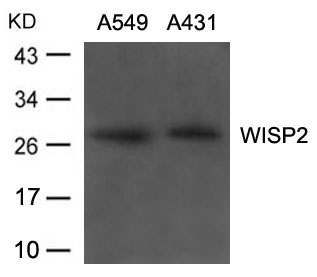 Figure 1. Western blot analysis of WISP2 using anti-WISP2 antibody (A04480).<br>Electrophoresis was performed on a 5-20% SDS-PAGE gel at 70V (Stacking gel) / 90V (Resolving gel) for 2-3 hours. The sample well of each lane was loaded with 50ug of sample under reducing conditions. <br>After Electrophoresis, proteins were transferred to a Nitrocellulose membrane at 150mA for 50-90 minutes. Blocked the membrane with 5% Non-fat Milk/ TBS for 1.5 hour at RT. The membrane was incubated with rabbit anti-WISP2 antigen affinity purified polyclonal antibody (Catalog # A04480) at 0.5 ug/mL overnight at 4°C, then washed with TBS-0.1%Tween 3 times with 5 minutes each and probed with a goat anti-Rabbit IgG-HRP secondary antibody at a dilution of 1:10000 for 1.5 hour at RT. The signal is developed using an Enhanced Chemiluminescent detection (ECL) kit (Catalog # SA1022) with Tanon 5200 system. A specific band was detected for WISP2.