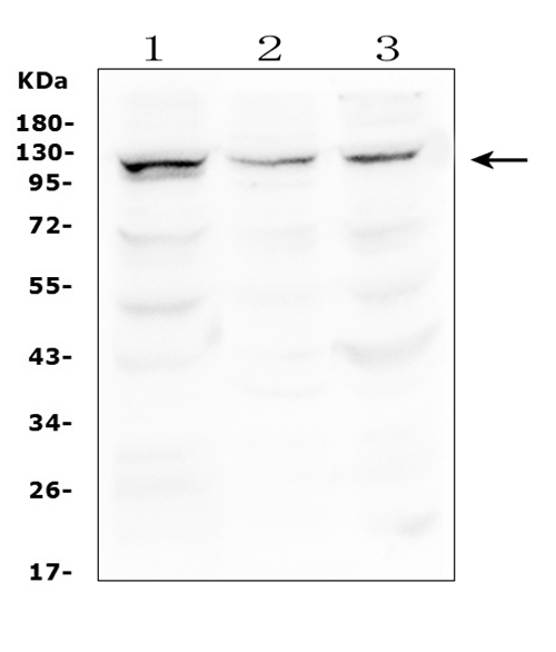 Figure 1. Western blot analysis of HERC5 using anti-HERC5 antibody (A05285-2). <br> Electrophoresis was performed on a 5-20% SDS-PAGE gel at 70V (Stacking gel) / 90V (Resolving gel) for 2-3 hours. The sample well of each lane was loaded with 50ug of sample under reducing conditions. <br> Lane 1: human HEK293 whole cell lysates, <br> Lane 2: human A549 whole cell lysates, <br> Lane 3: human PC-3 whole cell lysates. <br> After Electrophoresis, proteins were transferred to a Nitrocellulose membrane at 150mA for 50-90 minutes. Blocked the membrane with 5% Non-fat Milk/ TBS for 1.5 hour at RT. The membrane was incubated with rabbit anti-HERC5 antigen affinity purified polyclonal antibody (Catalog # A05285-2) at 0.5 μg/mL overnight at 4°C, then washed with TBS-0.1%Tween 3 times with 5 minutes each and probed with a goat anti-rabbit IgG-HRP secondary antibody at a dilution of 1:10000 for 1.5 hour at RT. The signal is developed using an Enhanced Chemiluminescent detection (ECL) kit (Catalog # EK1002) with Tanon 5200 system. A specific band was detected for HERC5 at approximately 117KD. The expected band size for HERC5 is at 117KD.