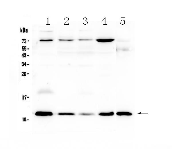 Figure 1. Western blot analysis of DYNLT1 using anti-DYNLT1 antibody (A05556).  <br>Electrophoresis was performed on a 5-20% SDS-PAGE gel at 70V (Stacking gel) / 90V (Resolving gel) for 2-3 hours. The sample well of each lane was loaded with 50ug of sample under reducing conditions.  <br>Lane 1: human U-87MG cell lysates, <br>Lane 2: human MCF-7 cell lysates, <br>Lane 3: human A549 cell lysates, <br>Lane 4: human HepG2 cell lysates, <br>Lane 5: mouse testis tissue lysates.<br>After Electrophoresis, proteins were transferred to a Nitrocellulose membrane at 150mA for 50-90 minutes. Blocked the membrane with 5% Non-fat Milk/ TBS for 1.5 hour at RT. The membrane was incubated with rabbit anti-DYNLT1 antigen affinity purified polyclonal antibody (Catalog # A05556) at 0.5 μg/mL overnight at 4°C, then washed with TBS-0.1%Tween 3 times with 5 minutes each and probed with a goat anti-rabbit IgG-HRP secondary antibody at a dilution of 1:10000 for 1.5 hour at RT. The signal is developed using an Enhanced Chemiluminescent detection (ECL) kit (Catalog # EK1002) with Tanon 5200 system. A specific band was detected for DYNLT1 at approximately 12KD. The expected band size for DYNLT1 is at 12KD.