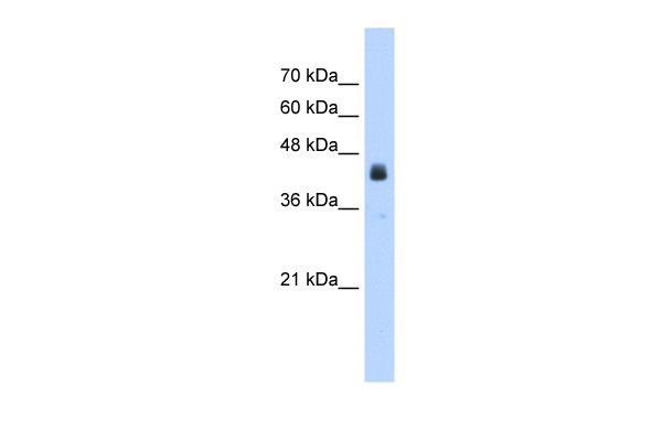 WB Suggested Anti-USP16 Antibody Titration: 2.5ug/mlPositive Control: HepG2 cell lysate