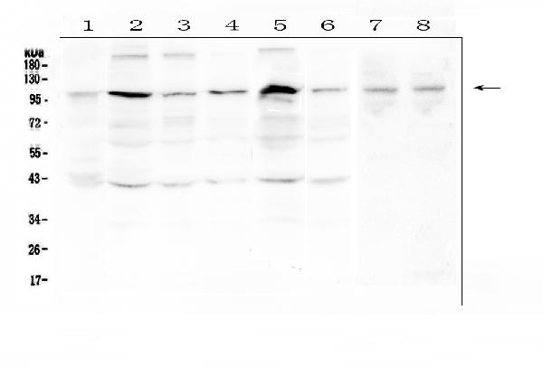 Figure 1. Western blot analysis of RSK3 using anti-RSK3 antibody (A06142-1).  <br>Electrophoresis was performed on a 5-20% SDS-PAGE gel at 70V (Stacking gel) / 90V (Resolving gel) for 2-3 hours. The sample well of each lane was loaded with 50ug of sample under reducing conditions.  <br>Lane 1: human placenta tissue lysates,<br>Lane 2: human Hela whole cell lysate,<br>Lane 3: human PC-3 whole cell lysate,<br>Lane 4: human A431 whole cell lysate,<br>Lane 5: human K562 whole cell lysate,<br>Lane 6: human PANC-1 whole cell lysate,<br>Lane 7: rat testis tissue lysates,<br>Lane 8: mouse testis tissue lysates.  <br>After Electrophoresis, proteins were transferred to a Nitrocellulose membrane at 150mA for 50-90 minutes. Blocked the membrane with 5% Non-fat Milk/ TBS for 1.5 hour at RT. The membrane was incubated with rabbit anti-RSK3 antigen affinity purified polyclonal antibody (Catalog # A06142-1) at 0.5 μg/mL overnight at 4°C, then washed with TBS-0.1%Tween 3 times with 5 minutes each and probed with a goat anti-rabbit IgG-HRP secondary antibody at a dilution of 1:10000 for 1.5 hour at RT. The signal is developed using an Enhanced Chemiluminescent detection (ECL) kit (Catalog # EK1002) with Tanon 5200 system. A specific band was detected for RSK3 at approximately 90-100KD. The expected band size for RSK3 is at 83KD.