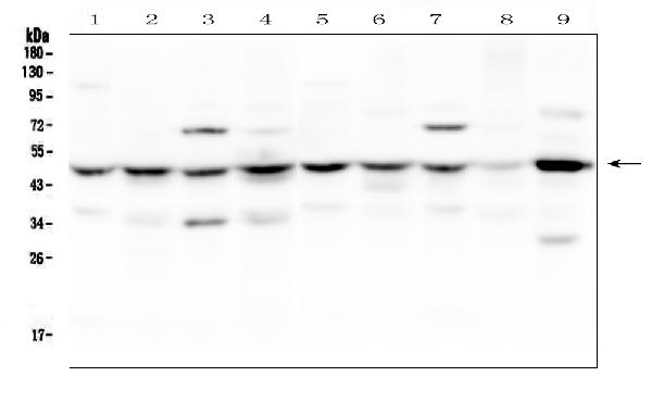 Figure 2. Western blot analysis of SF3B4 using anti-SF3B4 antibody (A06414-1). <br>Electrophoresis was performed on a 5-20% SDS-PAGE gel at 70V (Stacking gel) / 90V (Resolving gel) for 2-3 hours. The sample well of each lane was loaded with 50ug of sample under reducing conditions. <br>Lane 1: rat brain tissue lysates,<br>Lane 2: rat lung tissue lysates,<br>Lane 3: rat liver tissue lysates,<br>Lane 4: rat stomach tissue lysates,<br>Lane 5: mouse brain tissue lysates,<br>Lane 6: mouse lung tissue lysates,<br>Lane 7: mouse liver tissue lysates,<br>Lane 8: mouse stomach tissue lysates,<br>Lane 9: mouse NIH3T3 whole cell lysates. <br>After Electrophoresis, proteins were transferred to a Nitrocellulose membrane at 150mA for 50-90 minutes. Blocked the membrane with 5% Non-fat Milk/ TBS for 1.5 hour at RT. The membrane was incubated with rabbit anti-SF3B4 antigen affinity purified polyclonal antibody (Catalog # A06414-1) at 0.5 μg/mL overnight at 4°C, then washed with TBS-0.1%Tween 3 times with 5 minutes each and probed with a goat anti-rabbit IgG-HRP secondary antibody at a dilution of 1:10000 for 1.5 hour at RT. The signal is developed using an Enhanced Chemiluminescent detection (ECL) kit (Catalog # EK1002) with Tanon 5200 system. A specific band was detected for SF3B4 at approximately 49KD. The expected band size for SF3B4 is at 49KD.