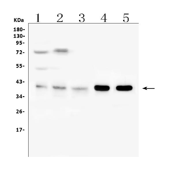 Figure 6. Western blot analysis of ARPC1B using anti-ARPC1B antibody (A07192-2). <br> Electrophoresis was performed on a 5-20% SDS-PAGE gel at 70V (Stacking gel) / 90V (Resolving gel) for 2-3 hours. The sample well of each lane was loaded with 50ug of sample under reducing conditions. <br> Lane 1: human placenta issue lysates, <br> Lane 2: human PC-3 whole cell lysates, <br> Lane 3: human U-937 whole cell lysates, <br> Lane 4: rat spleen issue lysates, <br> Lane 5: mouse spleen issue lysates. <br> After Electrophoresis, proteins were transferred to a Nitrocellulose membrane at 150mA for 50-90 minutes. Blocked the membrane with 5% Non-fat Milk/ TBS for 1.5 hour at RT. The membrane was incubated with rabbit anti-ARPC1B antigen affinity purified polyclonal antibody (Catalog # A07192-2) at 0.5 μg/mL overnight at 4°C, then washed with TBS-0.1%Tween 3 times with 5 minutes each and probed with a goat anti-rabbit IgG-HRP secondary antibody at a dilution of 1:10000 for 1.5 hour at RT. The signal is developed using an Enhanced Chemiluminescent detection (ECL) kit (Catalog # EK1002) with Tanon 5200 system. A specific band was detected for ARPC1B at approximately 41KD. The expected band size for ARPC1B is at 41KD.