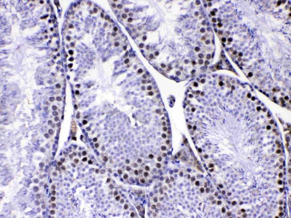 Figure 2. IHC analysis of MED8 using anti-MED8 antibody (A08094-1).<br>MED8 was detected in paraffin-embedded section of mouse testis tissue. Heat mediated antigen retrieval was performed in citrate buffer (pH6, epitope retrieval solution) for 20 mins. The tissue section was blocked with 10% goat serum. The tissue section was then incubated with 1ug/ml rabbit anti-MED8 Antibody (A08094-1) overnight at 4?? Biotinylated goat anti-rabbit IgG was used as secondary antibody and incubated for 30 minutes at 37?? The tissue section was developed using Strepavidin-Biotin-Complex (SABC)(Catalog # SA1022) with DAB as the chromogen. <br>
