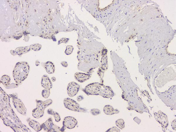 Figure 4. IHC analysis of SRCIN1 using anti-SRCIN1 antibody (A08110-1).<br>SRCIN1 was detected in paraffin-embedded section of human placenta tissue. Heat mediated antigen retrieval was performed in citrate buffer (pH6, epitope retrieval solution) for 20 mins. The tissue section was blocked with 10% goat serum. The tissue section was then incubated with 1μg/ml rabbit anti-SRCIN1 Antibody (A08110-1) overnight at 4°C. Biotinylated goat anti-rabbit IgG was used as secondary antibody and incubated for 30 minutes at 37°C. The tissue section was developed using Strepavidin-Biotin-Complex (SABC)(Catalog # SA1022) with DAB as the chromogen. <br>