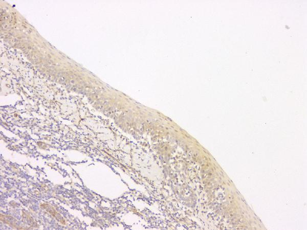 Figure 7. IHC analysis of SRCIN1 using anti-SRCIN1 antibody (A08110-1).<br>SRCIN1 was detected in paraffin-embedded section of human tonsil tissue. Heat mediated antigen retrieval was performed in citrate buffer (pH6, epitope retrieval solution) for 20 mins. The tissue section was blocked with 10% goat serum. The tissue section was then incubated with 1μg/ml rabbit anti-SRCIN1 Antibody (A08110-1) overnight at 4°C. Biotinylated goat anti-rabbit IgG was used as secondary antibody and incubated for 30 minutes at 37°C. The tissue section was developed using Strepavidin-Biotin-Complex (SABC)(Catalog # SA1022) with DAB as the chromogen. <br>