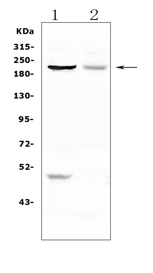 Figure 1. Western blot analysis of KIF20B using anti-KIF20B antibody (A08340). <br> Electrophoresis was performed on a 5-20% SDS-PAGE gel at 70V (Stacking gel) / 90V (Resolving gel) for 2-3 hours. The sample well of each lane was loaded with 50ug of sample under reducing conditions. <br> Lane 1: human PC-3 whole cell lysates, <br> Lane 2: human A549 whole cell lysates. <br> After Electrophoresis, proteins were transferred to a Nitrocellulose membrane at 150mA for 50-90 minutes. Blocked the membrane with 5% Non-fat Milk/ TBS for 1.5 hour at RT. The membrane was incubated with rabbit anti-KIF20B antigen affinity purified polyclonal antibody (Catalog # A08340) at 0.5 μg/mL overnight at 4°C, then washed with TBS-0.1%Tween 3 times with 5 minutes each and probed with a goat anti-rabbit IgG-HRP secondary antibody at a dilution of 1:10000 for 1.5 hour at RT. The signal is developed using an Enhanced Chemiluminescent detection (ECL) kit (Catalog # EK1002) with Tanon 5200 system. A specific band was detected for KIF20B at approximately 211KD. The expected band size for KIF20B is at 211KD.