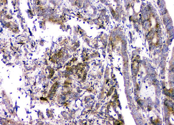Figure 2. IHC analysis of RMI2 using anti-RMI2 antibody (A08685).<br>RMI2 was detected in paraffin-embedded section of human intestinal cancer tissue. Heat mediated antigen retrieval was performed in citrate buffer (pH6, epitope retrieval solution) for 20 mins. The tissue section was blocked with 10% goat serum. The tissue section was then incubated with 1μg/ml rabbit anti-RMI2 Antibody (A08685) overnight at 4°C. Biotinylated goat anti-rabbit IgG was used as secondary antibody and incubated for 30 minutes at 37°C. The tissue section was developed using Strepavidin-Biotin-Complex (SABC)(Catalog # SA1022) with DAB as the chromogen. <br>