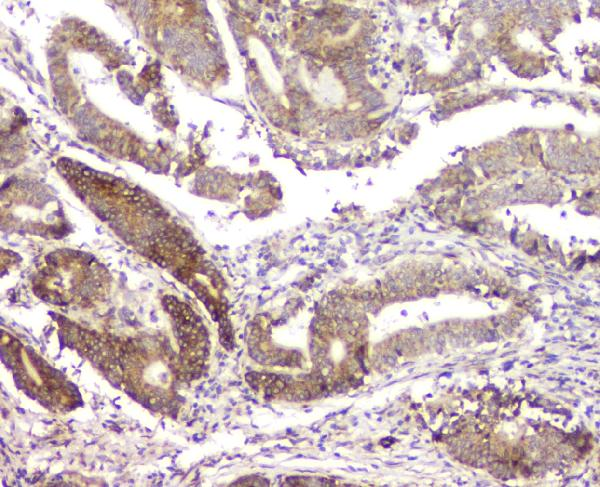 Figure 3. IHC analysis of RMI2 using anti-RMI2 antibody (A08685).<br>RMI2 was detected in paraffin-embedded section of human intestinal cancer tissue. Heat mediated antigen retrieval was performed in citrate buffer (pH6, epitope retrieval solution) for 20 mins. The tissue section was blocked with 10% goat serum. The tissue section was then incubated with 1μg/ml rabbit anti-RMI2 Antibody (A08685) overnight at 4°C. Biotinylated goat anti-rabbit IgG was used as secondary antibody and incubated for 30 minutes at 37°C. The tissue section was developed using Strepavidin-Biotin-Complex (SABC)(Catalog # SA1022) with DAB as the chromogen. <br>