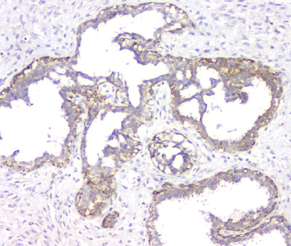Figure 5. IHC analysis of RMI2 using anti-RMI2 antibody (A08685).<br>RMI2 was detected in paraffin-embedded section of human mammary cancer tissue. Heat mediated antigen retrieval was performed in citrate buffer (pH6, epitope retrieval solution) for 20 mins. The tissue section was blocked with 10% goat serum. The tissue section was then incubated with 1μg/ml rabbit anti-RMI2 Antibody (A08685) overnight at 4°C. Biotinylated goat anti-rabbit IgG was used as secondary antibody and incubated for 30 minutes at 37°C. The tissue section was developed using Strepavidin-Biotin-Complex (SABC)(Catalog # SA1022) with DAB as the chromogen. <br>