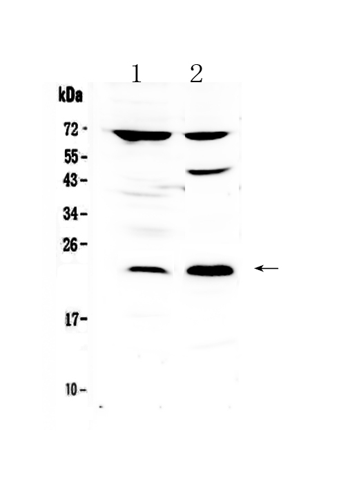 Figure 1. Western blot analysis of TRFP / MED20 using anti-TRFP / MED20 antibody (A09407-1). <br>Electrophoresis was performed on a 5-20% SDS-PAGE gel at 70V (Stacking gel) / 90V (Resolving gel) for 2-3 hours. The sample well of each lane was loaded with 50ug of sample under reducing conditions. <br>Lane 1: rat brain tissue lysates,<br>Lane 2: human PANC-1 whole cell lysates. <br>After Electrophoresis, proteins were transferred to a Nitrocellulose membrane at 150mA for 50-90 minutes. Blocked the membrane with 5% Non-fat Milk/ TBS for 1.5 hour at RT. The membrane was incubated with rabbit anti-TRFP / MED20 antigen affinity purified polyclonal antibody (Catalog # A09407-1) at 0.5 ug/mL overnight at 4?? then washed with TBS-0.1%Tween 3 times with 5 minutes each and probed with a goat anti-rabbit IgG-HRP secondary antibody at a dilution of 1:10000 for 1.5 hour at RT. The signal is developed using an Enhanced Chemiluminescent detection (ECL) kit (Catalog # EK1002) with Tanon 5200 system. A specific band was detected for TRFP / MED20 at approximately 23KD. The expected band size for TRFP / MED20 is at 23KD.