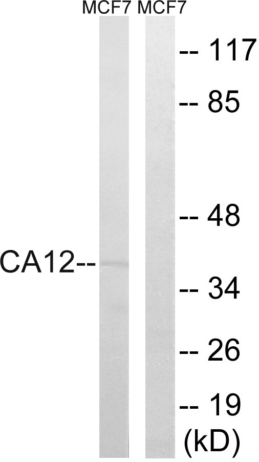/C/A/CAH12 primary antibodies A30588 WB testing.jpg