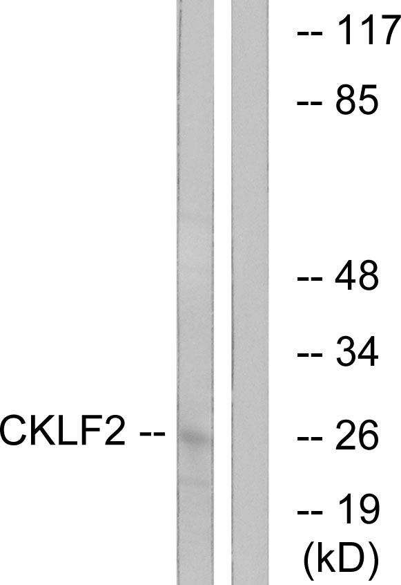 Western blot analysis of lysates from K562 cells, using CKLF2 Antibody. The lane on the right is blocked with the synthesized peptide.