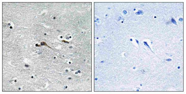 Immunohistochemistry analysis of paraffin-embedded human brain tissue, using CYTL1 Antibody. The picture on the right is blocked with the synthesized peptide.