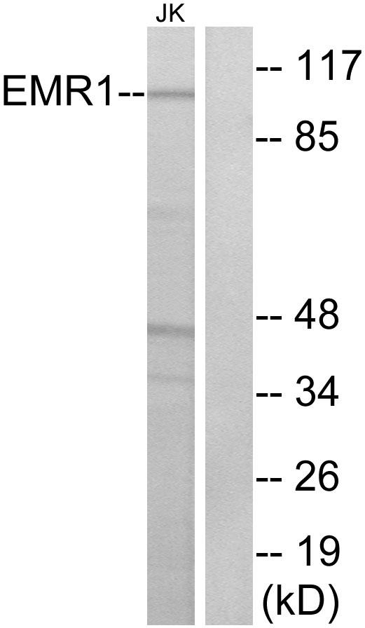 Anti-EMR1 Antibody