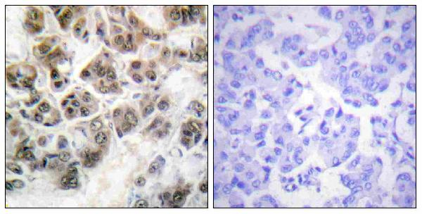 Immunohistochemistry analysis of paraffin-embedded human brain, using Histone H3.3 Antibody. The picture on the right is blocked with the synthesized peptide.