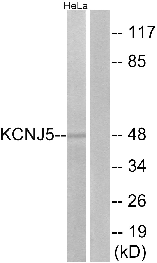 Western blot analysis of lysates from HeLa cells, using KCNJ5 Antibody. The lane on the right is blocked with the synthesized peptide.
