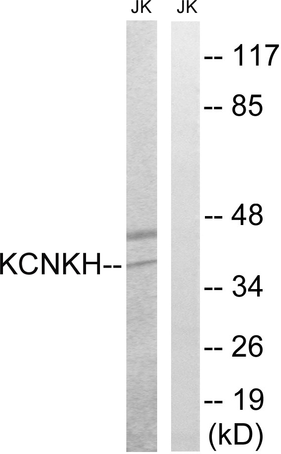 Western blot analysis of lysates from Jurkat cells, using KCNK17 Antibody. The lane on the right is blocked with the synthesized peptide.