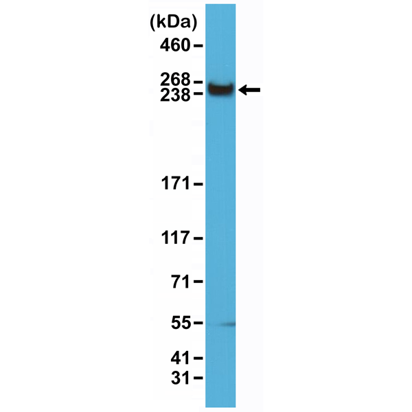 Figure 1. Western Blotting result<br>Western Blot of HeLa cells lysates using Anti-mTOR Rabbit Monoclonal Antibody (Clone RM274) at a 1:1500 dilution.