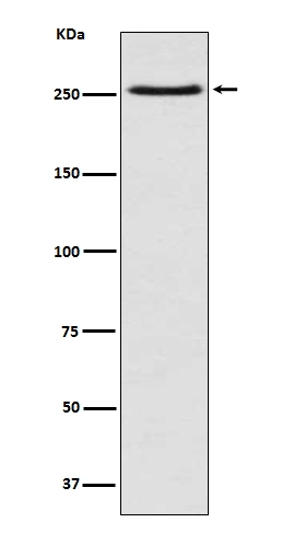 Western blot analysis of mTOR expression in Jurkat cell lysate (M00003). <br>Electrophoresis was performed on a 5-20% SDS-PAGE gel at 70V (Stacking gel) / 90V (Resolving gel) for 2-3 hours. The sample well of each lane was loaded with 50ug of sample under reducing conditions. <br> After Electrophoresis, proteins were transferred to a Nitrocellulose membrane at 150mA for 50-90 minutes. Blocked the membrane with 5% Non-fat Milk/ TBS for 1.5 hour at RT. The membrane was incubated with rabbit anti-MTOR monoclonal antibody (Catalog # M00003)  overnight at 4°C, then washed with TBS-0.1%Tween 3 times with 5 minutes each and probed with a goat anti-rabbit IgG-HRP secondary antibody at a dilution of 1:10000 for 1.5 hour at RT. The signal is developed using an Enhanced Chemiluminescent detection (ECL) kit (Catalog # EK1002) with Tanon 5200 system. A specific band was detected for MTOR