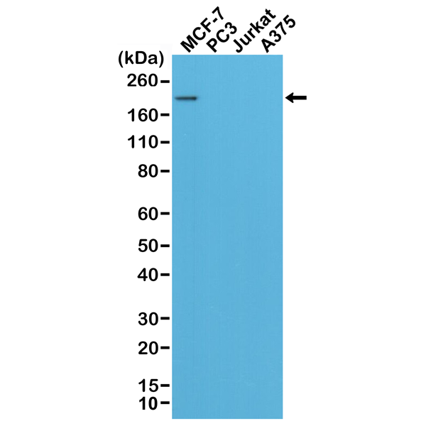 Figure 1. Western Blotting result<br>Western Blot of MCF-7, PC3, Jurkat, and A375 cell lysates using RM228, showed a band of Her2 expressed only in MCF-7 cells.