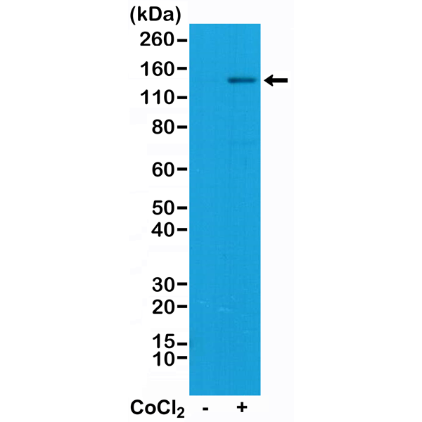 Figure 1. Western Blotting result<br>Western Blot of Jurkat cell lysate, nontreated or treated with Cobalt(II) chloride (CoCl2), using Anti-HIF-1-alpha RM242 at a 1:1000 dilution, showed that HIF-1-alpha (~120 kDa) expression was induced by CoCl2 in Jurkat cells.