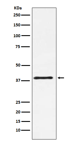 Figure 1. Western blot analysis of CTLA4 using anti-CTLA4 antibody (M00020) in NIH/3T3 cell lysate.<br>Electrophoresis was performed on a 5-20% SDS-PAGE gel at 70V (Stacking gel) / 90V (Resolving gel) for 2-3 hours. The sample well of each lane was loaded with 50ug of sample under reducing conditions. <br>After Electrophoresis, proteins were transferred to a Nitrocellulose membrane at 150mA for 50-90 minutes. Blocked the membrane with 5% Non-fat Milk/ TBS for 1.5 hour at RT. The membrane was incubated with rabbit anti-CTLA4 antigen affinity purified polyclonal antibody (Catalog # M00020) at 0.5 ug/mL overnight at 4°C, then washed with TBS-0.1%Tween 3 times with 5 minutes each and probed with a goat anti-Rabbit IgG IgG-HRP secondary antibody at a dilution of 1:10000 for 1.5 hour at RT. The signal is developed using an Enhanced Chemiluminescent detection (ECL) kit (Catalog # SA1022) with Tanon 5200 system. A specific band was detected for CTLA4.
