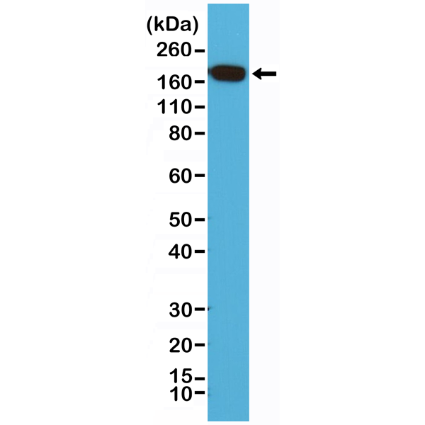 Figure 1. Western Blotting result<br>Western Blot of HeLa cell lysates using anti-EGF Receptor rabbit monoclonal antibody (clone RM294) at a 1:200 dilution.