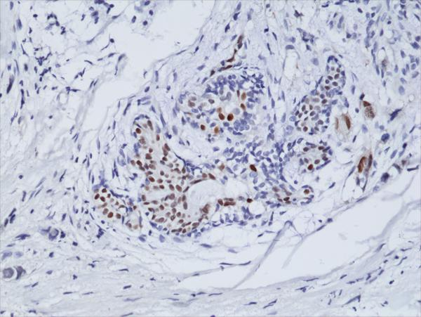 Figure 2. IHC result<br>Immunohistochemical staining of formalin fixed and paraffin embedded human breast cancer tissue sections using anti-ER-alpha rabbit monoclonal antibody (clone RM292) at a 1:100 dilution.