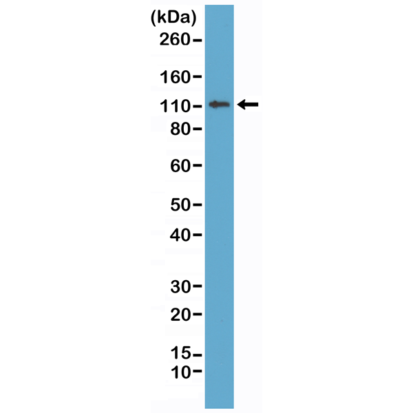 Figure 1. Western Blotting result<br>Western Blot of MCF-7 cell lysates using Anti-E-cadherin RM244 at a 1:1000 dilution, showed a band of E-cadherin (~120 kDa) expressed in MCF-7 cells.