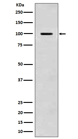 Western blot analysis of Amyloid beta A4 expression in mouse brain lysate (M00081). <br>Electrophoresis was performed on a 5-20% SDS-PAGE gel at 70V (Stacking gel) / 90V (Resolving gel) for 2-3 hours. The sample well of each lane was loaded with 50ug of sample under reducing conditions. <br> After Electrophoresis, proteins were transferred to a Nitrocellulose membrane at 150mA for 50-90 minutes. Blocked the membrane with 5% Non-fat Milk/ TBS for 1.5 hour at RT. The membrane was incubated with rabbit anti-APP monoclonal antibody (Catalog # M00081)  overnight at 4°C, then washed with TBS-0.1%Tween 3 times with 5 minutes each and probed with a goat anti-rabbit IgG-HRP secondary antibody at a dilution of 1:10000 for 1.5 hour at RT. The signal is developed using an Enhanced Chemiluminescent detection (ECL) kit (Catalog # EK1002) with Tanon 5200 system. A specific band was detected for APP