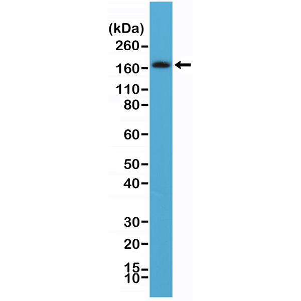Figure 1. Western Blotting result<br>Western Blot of human brain tissue lysate using anti-CD140b rabbit monoclonal antibody (Clone RM303) at a 1:100 dilution.