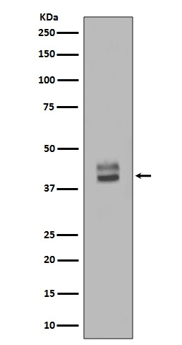 Western blot analysis of ERK1/2 Antibody expression in HepG2 whole cell lysates (M00104-1). <br>Electrophoresis was performed on a 5-20% SDS-PAGE gel at 70V (Stacking gel) / 90V (Resolving gel) for 2-3 hours. The sample well of each lane was loaded with 50ug of sample under reducing conditions. <br> After Electrophoresis, proteins were transferred to a Nitrocellulose membrane at 150mA for 50-90 minutes. Blocked the membrane with 5% Non-fat Milk/ TBS for 1.5 hour at RT. The membrane was incubated with rabbit anti-MAPK3 monoclonal antibody (Catalog # M00104-1)  overnight at 4°C, then washed with TBS-0.1%Tween 3 times with 5 minutes each and probed with a goat anti-rabbit IgG-HRP secondary antibody at a dilution of 1:10000 for 1.5 hour at RT. The signal is developed using an Enhanced Chemiluminescent detection (ECL) kit (Catalog # EK1002) with Tanon 5200 system. A specific band was detected for MAPK3
