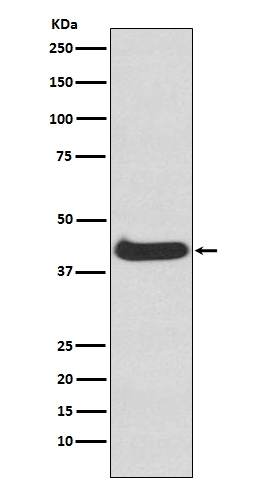 Western blot analysis of ERK1 in NIH-3T3 cell lysate (M00104). <br>Electrophoresis was performed on a 5-20% SDS-PAGE gel at 70V (Stacking gel) / 90V (Resolving gel) for 2-3 hours. The sample well of each lane was loaded with 50ug of sample under reducing conditions. <br> After Electrophoresis, proteins were transferred to a Nitrocellulose membrane at 150mA for 50-90 minutes. Blocked the membrane with 5% Non-fat Milk/ TBS for 1.5 hour at RT. The membrane was incubated with rabbit anti-MAPK3 monoclonal antibody (Catalog # M00104)  overnight at 4?? then washed with TBS-0.1%Tween 3 times with 5 minutes each and probed with a goat anti-rabbit IgG-HRP secondary antibody at a dilution of 1:10000 for 1.5 hour at RT. The signal is developed using an Enhanced Chemiluminescent detection (ECL) kit (Catalog # EK1002) with Tanon 5200 system. A specific band was detected for MAPK3