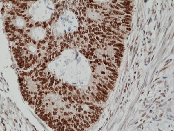 Figure 2. IHC result<br>Immunohistochemical staining of formalin fixed and paraffin embedded human colon cancer tissue section using anti-MSH2 rabbit monoclonal antibody (Clone RM375) at a 1:100 dilution.